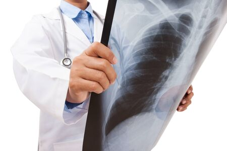 roentgen: Doctor holding x-ray or roentgen image. Stock Photo