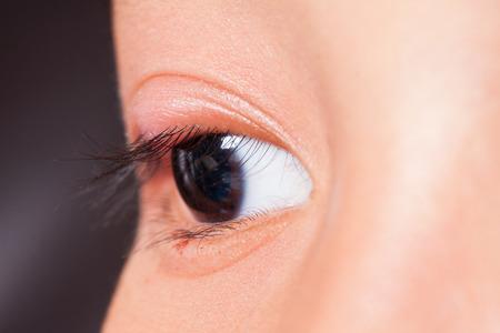 barley head: Close up right upper eye lid abscess, stye or hordeolum