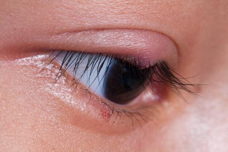 Close up right upper eye lid abscess, stye or hordeolum
