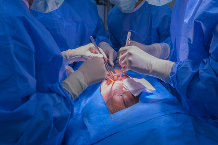 Doctors team wear blue coat perform heart surgery with cadaver at the operating room in the hospital. Archivio Fotografico