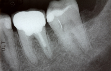 Closeup photo of teeth x-ray showing problem with infected gum and failed root