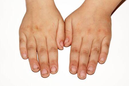 manos sucias: Las manos sucias de un ni�o sobre un fondo blanco