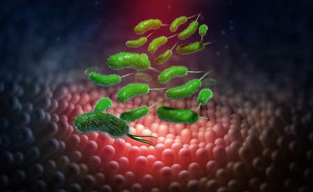Bowel infection, upset stomach, germs and viruses in body. Intestinal walls and viral inflammation under a microscope. 3D illustration of medical research