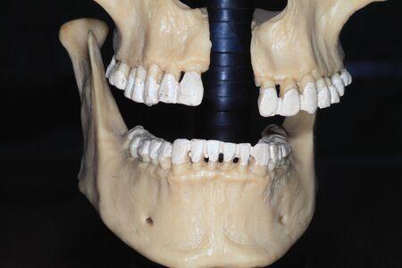 Photo moulage jaw bone close-up on dark background Stock Photo - 17754692
