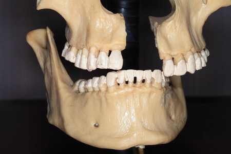 The upper jaw and lower anatomical drug person close-up on a dark background   Stock Photo