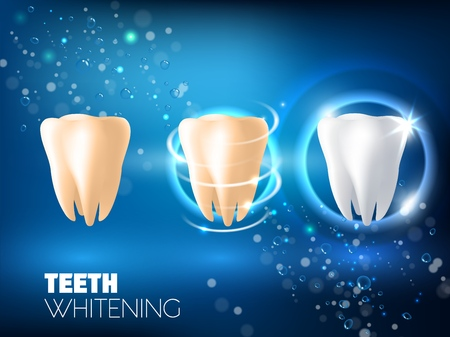 Teeth whitening concept vector realistic illustration. Tooth before whitening, during and after whitening procedure on blue sparkling background. Dental health and teeth restoration ad design template
