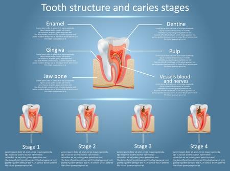 Diagramma vettoriale della struttura del dente umano e fasi della carie. Anatomia dentale e carie o concetto di sviluppo di cavità. Poster anatomico medico di formazione.