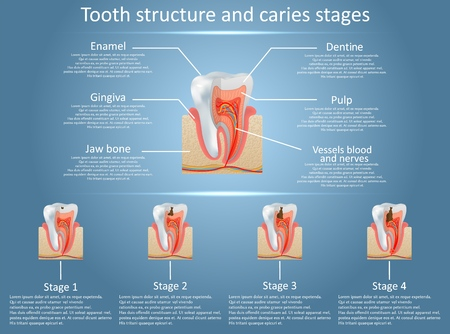 Human tooth structure vector diagram and caries stages. Dental anatomy and tooth decay or cavities development concept. Training medical anatomical poster.