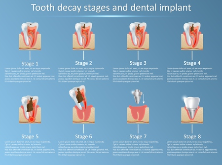 Tooth decay stages and dental implant. Vector illustration. Dental medicine and replacement concept. Training medical anatomical poster.