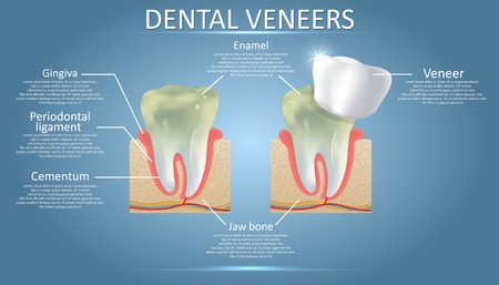 Dental veneers diagram, vector educational poster, diagram Ilustracja