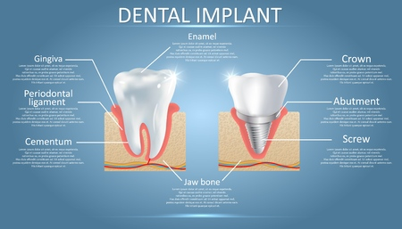 Human tooth and dental implant, vector educational poster