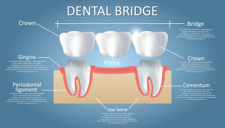 Dental bridge concept vector educational poster, diagram