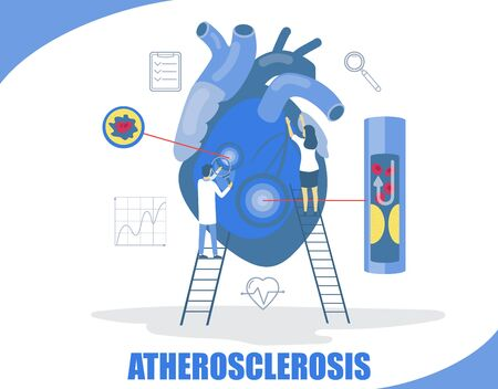 Atherosclerosis concept vector flat style design illustration. Tiny characters doctors examining big human heart. Atherosclerosis, leading cause of heart attacks, stroke, peripheral vascular disease.