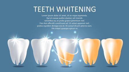 Teeth whitening vector medical poster banner template