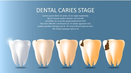 Dental caries stages vector medical poster banner template