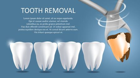 Tooth removal vector medical poster banner template Vektorové ilustrace