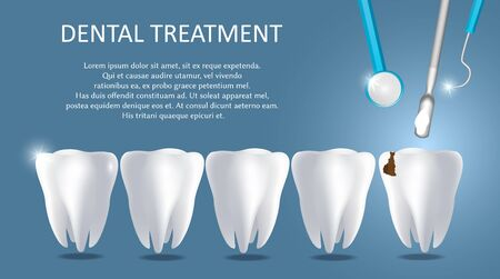 Dental treatment vector medical poster banner template. Realistic human teeth and dentist tools. Dental restoration or filling concept.