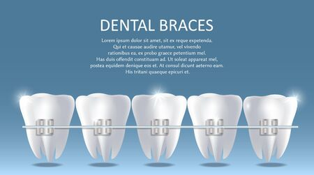 Dental braces vector poster banner template. Realistic white teeth with metal brackets. Orthodontic treatment, bite correction concept.