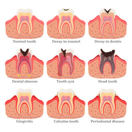 Tooth disorders set, flat vector illustration. Healthy and unhealthy teeth. Dental problems and diseases. Ilustracja
