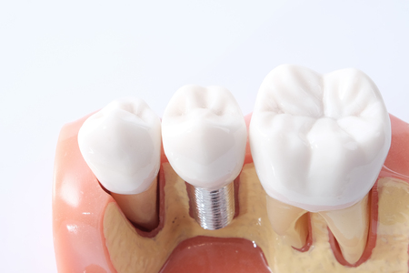 implantology: Generic Dental Implant Study Analysis Crown Bridge Demonstration Teeth Model