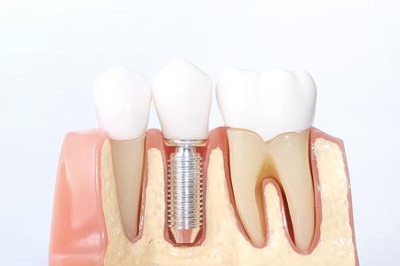 Generic Dental Implant Study Analysis Crown Bridge Demonstration Teeth Model
