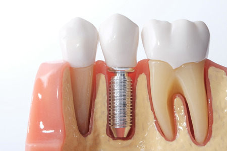 implantology: Generic Dental Implant Study Analysis Crown Bridge Demonstration Teeth Model. Stock Photo