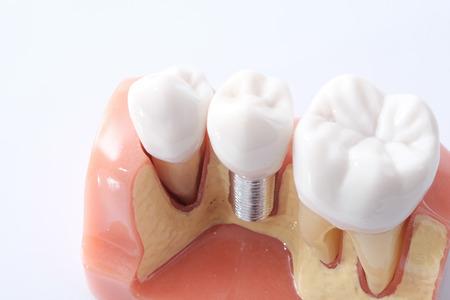 Generische tandheelkundige implantaat studie analyse Crown Bridge Demonstratie Tanden Model Stockfoto