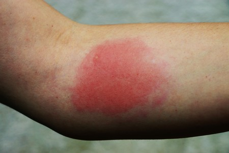 말벌의 고통에 대한 고통스러운 알레르기 반응 스톡 콘텐츠