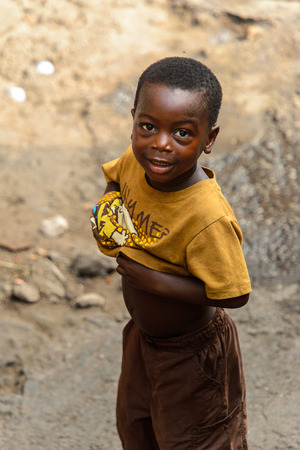 ACCRA, GHANA - JAN 8, 2017: Unidentified Ghanaian little boy in mustard shirt shows his belly. Children of Ghana suffer of poverty due to the economic situation