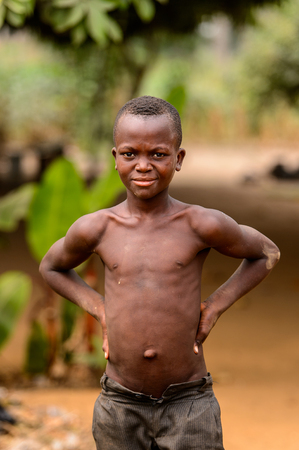 LOME, TOGO - Jan 9, 2017: Unidentified Togolese young topless boy puts his hands on his hips. Togo children suffer of poverty due to the bad economy