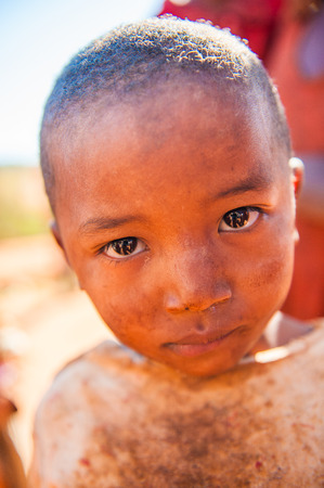 MADAGASCAR - JULY 1, 2011: Portrait of an unidentified angry little girl in Madagascar, July 1, 2011. Children of Madagascar suffer of poverty due to the unstable situation.