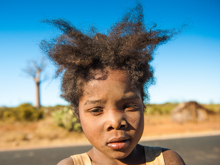 MADAGASCAR - JULY 3, 2011: Portrait of an unidentified girl with wierd hair cut in Madagascar, July 3, 2011. Children of Madagascar suffer of poverty due to the unstable situation.