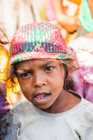 MADAGASCAR - JUNE 30, 2011: Portrait of an unidentified angry little girl in Madagascar, June 30, 2011. People of Madagascar suffer of poverty due to the unstable situation. 新闻类图片