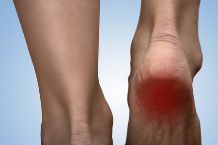 pies: Talón doloroso con una mancha roja en el pie de la mujer. Artritis. Concepto acicate Sole. El dolor de talón en las mujeres. Concepto de dolor