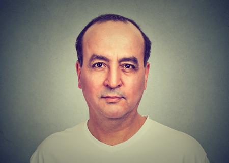 balding: Balding middle aged man