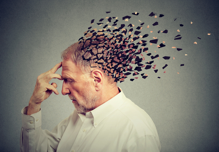 Memory loss due to dementia. Senior man losing parts of head  as symbol of decreased mind function. 스톡 콘텐츠