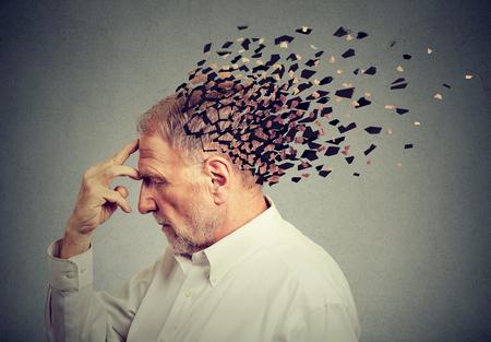 Utrata pamięci z powodu demencji. Starszy mężczyzna traci części głowy jako symbol obniżonej funkcji umysłu.