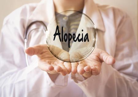 médico de la mujer sosteniendo una burbuja transparente con texto de alopecia, concepto de alopecia