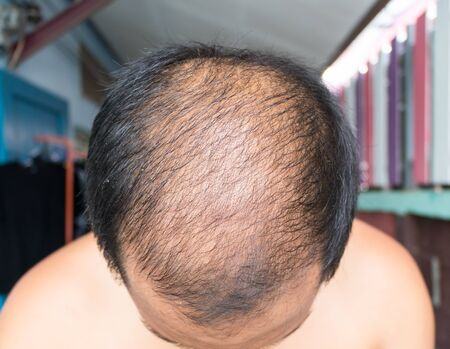 a man baldness,Middle-aged man concerned with hair loss