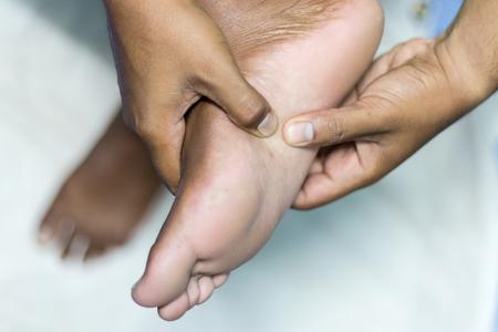 Inferior or plantar heel pain Plantar fasciitis  (Health concept) Stock Photo