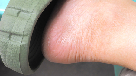 three years old: Heel zoom in skin fourty three years old