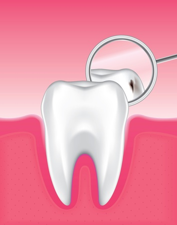 holten: Tekening van het tandvlees en tandglazuur