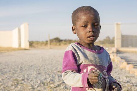 LUBANGOANGOLA - 13 JULY 2016 - Portrait of sick african child