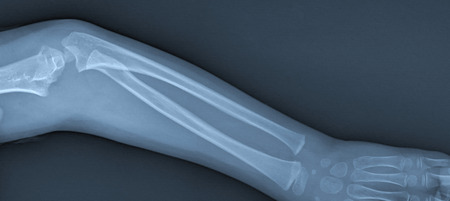 X ray of broken arm with humerus fracture photo