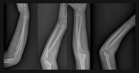 brazo roto: Radiograf�a del brazo roto con fractura de h�mero Foto de archivo