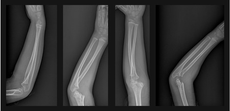 humerus: X ray of broken arm with humerus fracture