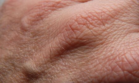 human skin texture: Human skin in close up
