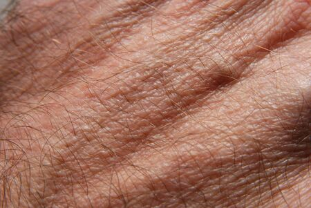Human skin in close up photo