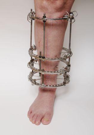 deformity: External ring fixation technique in orthopedic medicine