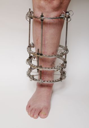 Technique de fixation externe anneau en médecine orthopédique